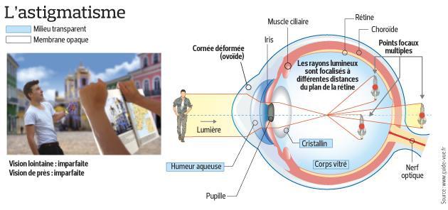 Il s'agit d'une coupe de l'oeil en version astigmate