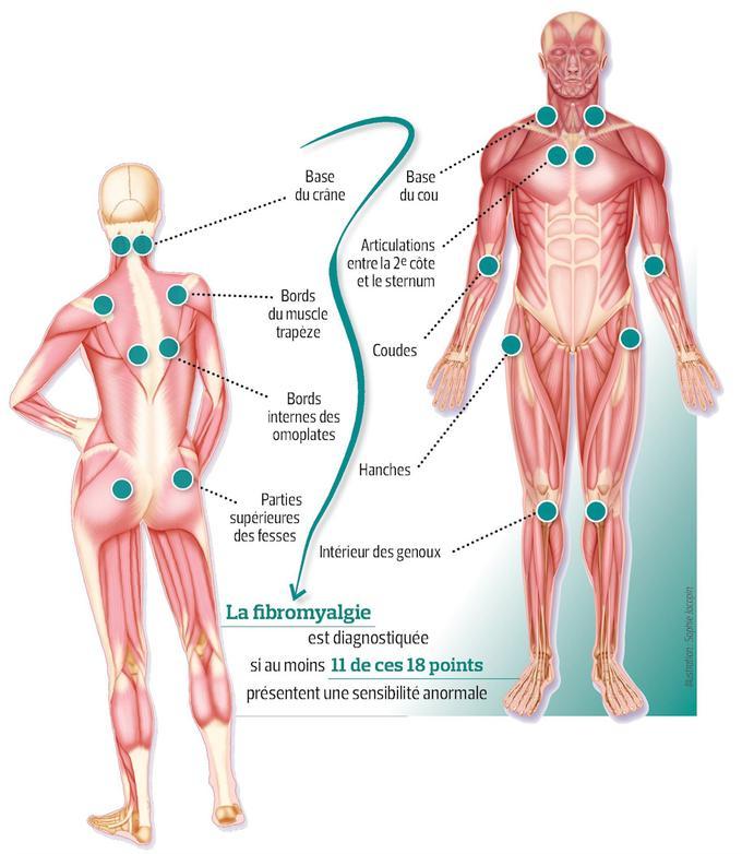 Ce schéma présente les différents points douloureux de la fibromyalgie sur le corps humain