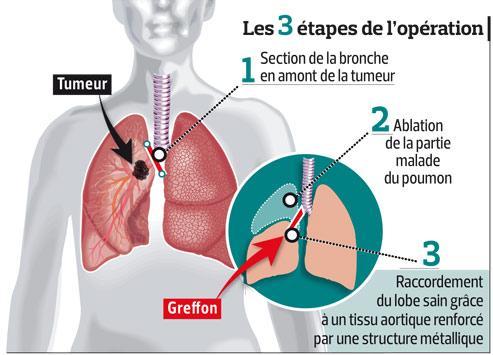Cette image présente la chirurgie du poumon