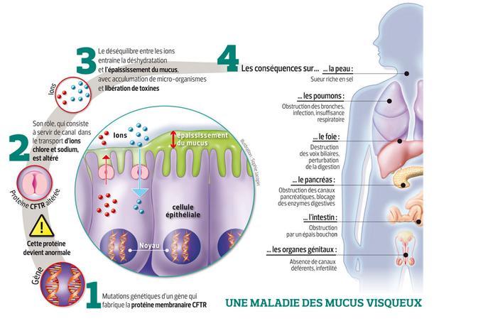 Schéma la mucoviscidose