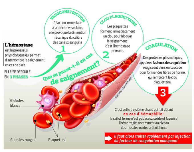 Cette infographie explique les mécanismes de l'hémophilie