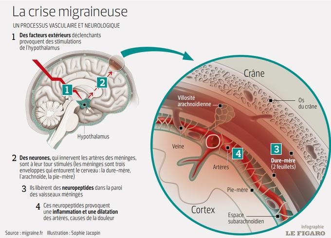Cette infographie montre le processus d'une crise migraineuse à l'intérieur du cerveau