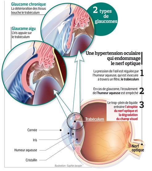 Ce schéma explique la différence entre les glaucomes