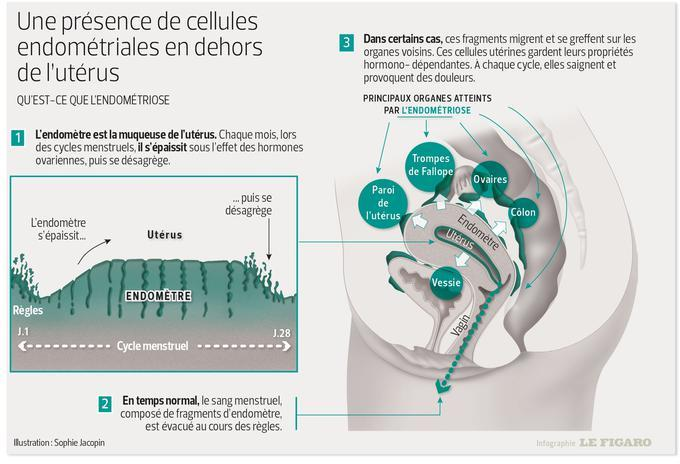 il s'agit d'une infographie explicative de l'endométriose