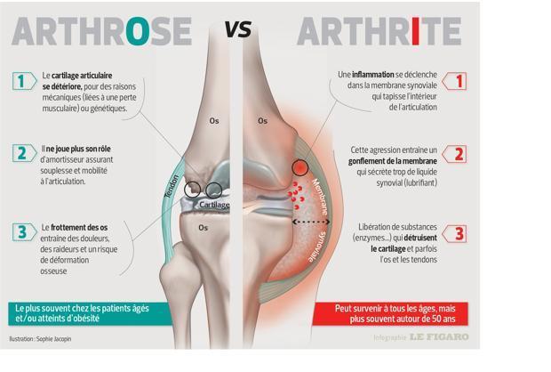 cette infographie détaille les différences entre l'arthrose et l'arthrite