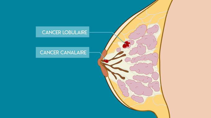 Cette infographie fait la différence entre cancer lobulaire et cancer canalaire