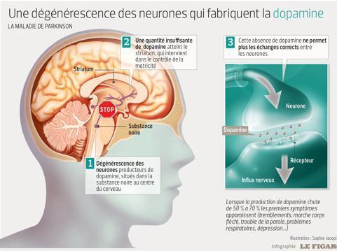 Que se passe-t-il dans le cerveau des malades Parkinson ?