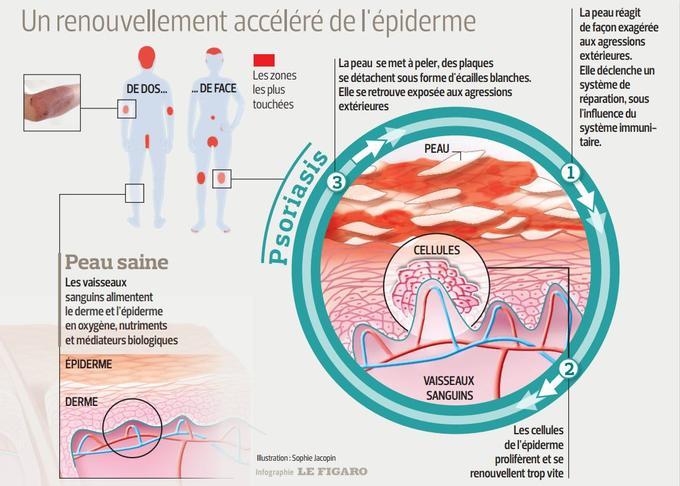 Cette infographie explique ce qui provoque le psoriasis dans les cellules de peau