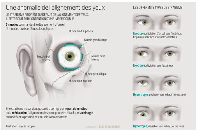 Cette infographie présente le fonctionnement de la pathologie du strabisme