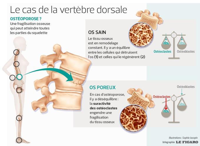 Ce schéma illustre la fragilité des os mise en cause dans l'ostéoporose