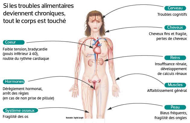 Les symptômes de l'anorexie