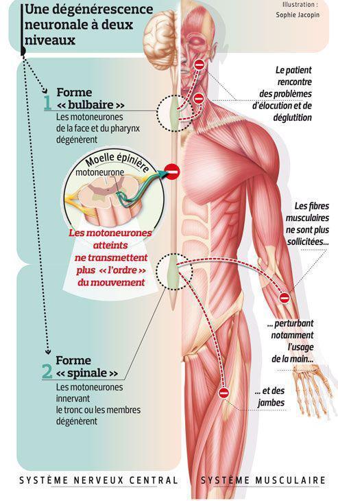 Ce schéma illustre la maladie de Charcot