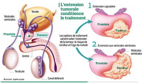 taux psa élevé sans prostate