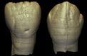 D'étranges dents humaines découvertes dans le nord de la Chine