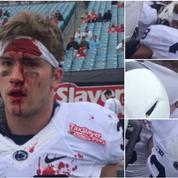 Foot US : il motive ses partenaires en donnant des coups de tête et termine le visage en sang