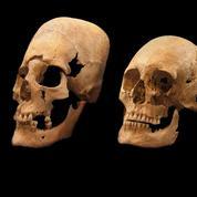 D'étranges crânes allongés en Europe à l'aube du Moyen-Âge
