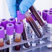Rubéole, prostate, cholestérol... Les examens biologiques sont parfois trompeurs