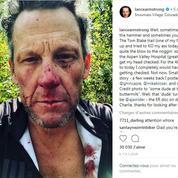 Lance Armstrong le visage tuméfié et sanguinolent après une chute de vélo