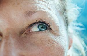 Chirurgie de la cataracte: se poser les bonnes questions