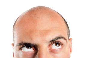Faut-il avoir peur des médicaments anti-calvitie?
