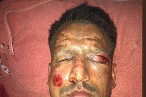 Lucas Viatri grièvement blessé par des pièces de feu d'artifice.