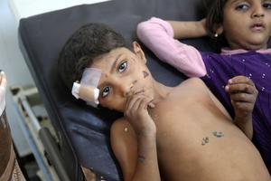 Au Yémen, un enfant meurt toutes les dix minutes de maladie selon les Nations unies.