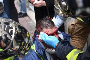 Le manifestant a été pris en charge par les pompiers. Les photos diffusées par l'AFP donnent à voir une blessure ouverte sur le côté droit de son crâne.