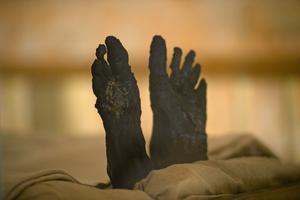 Le dioxyde de carbone, l'humidité et la poussière font partie des nombreuses menaces qui planent sur la momie.