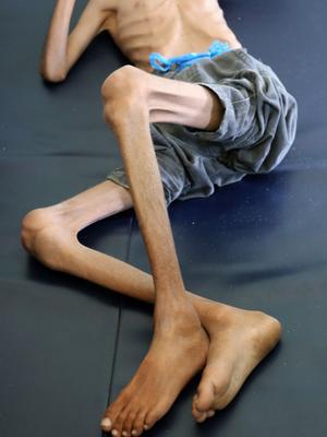 Âgé de 10 ans, Ghazi pesait 8 kilos à son arrivée à l'hôpital.