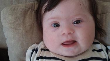 Comment l'histoire de Louise, «un chromosome en plus», a fait le tour du monde