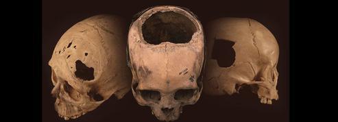 Les impressionnantes chirurgies crâniennes de l'empire Inca