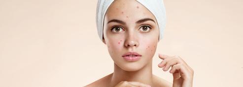 Vers un vaccin contre l'acné