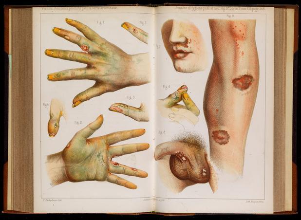 Des dommages physiques causés par l'usage d'arsenic vert, image datant de 1859.