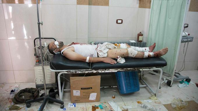 Un blessé à l'hôpital d'Alep, samedi.
