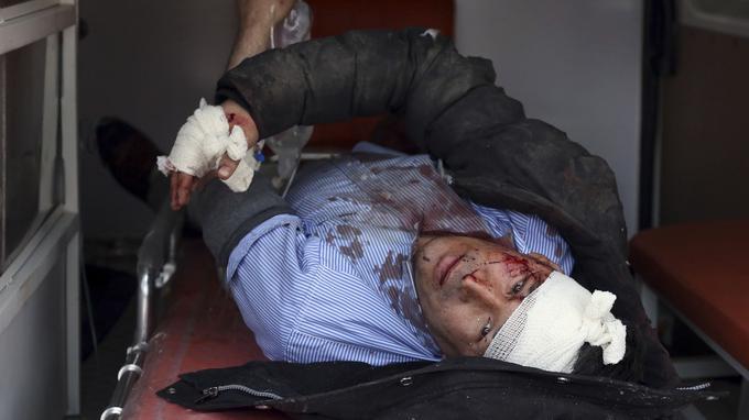 Un homme blessé après l'attentat.