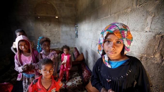 La malnutrition est un des fléaux majeurs de la guerre au Yémen qui aurait déjà tué 85.000 enfants.