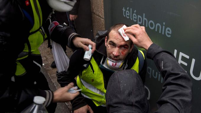 Un manifestant blessé à Nantes, lors de la manifestation des «gilets jaunes» du 8 décembre.