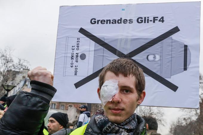 Parmi les manifestants rassemblés, Frank a expliqué avoir été blessé pendant une manifestation de «gilets jaunes».