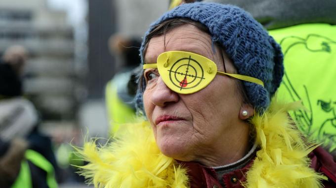 Une manifestante porte un cache-œil lors du rassemblement contre les violences policières à Paris, samedi.