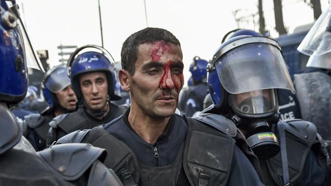 Un membre des forces de sécurité algériennes le visage ensanglanté.