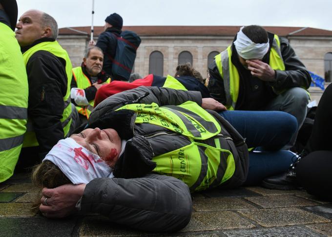 Une manifestante est venue avec un bandage sur la tête, pour alerter sur les dangers des armes utilisées par les policiers, ce samedi, à Besançon.