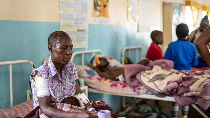 À l'hôpital de Chimanimani dans l'est du Zimbabwe.