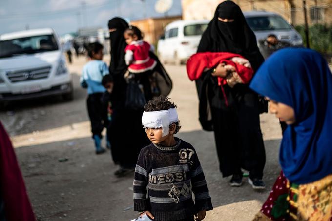 Un enfant blessé, vivant dans le camp d'Al-Hol.