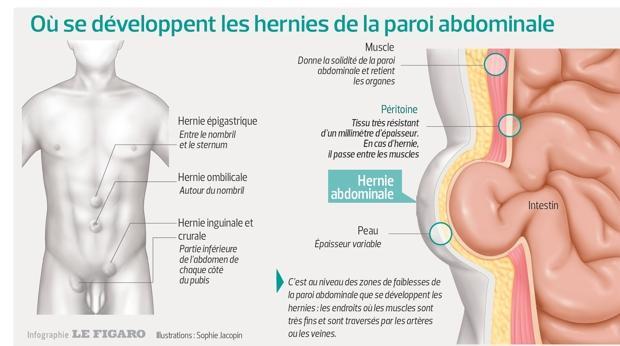 Hernie inguinale femme operation