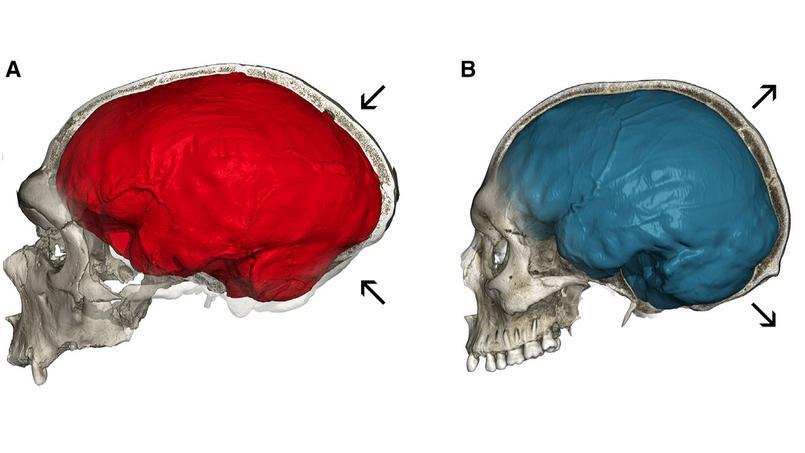 Ce que notre cerveau a de Néandertal