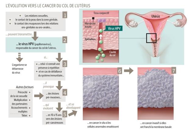 delai entre hpv et cancer