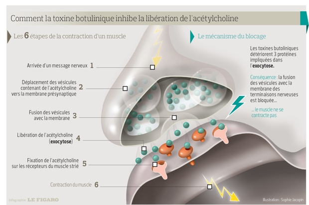 Cancer rectal traitement chirurgical Formation injection toxine botulique