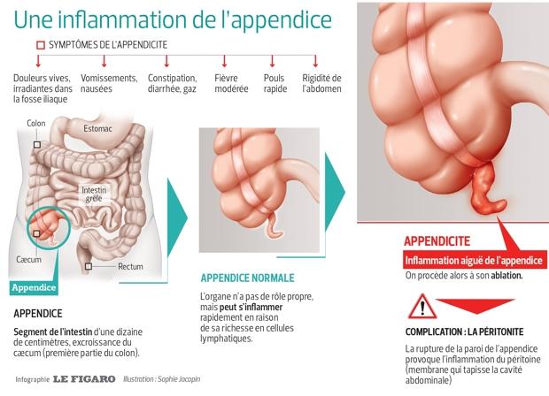 appendicite desolador a clumsy ou droite