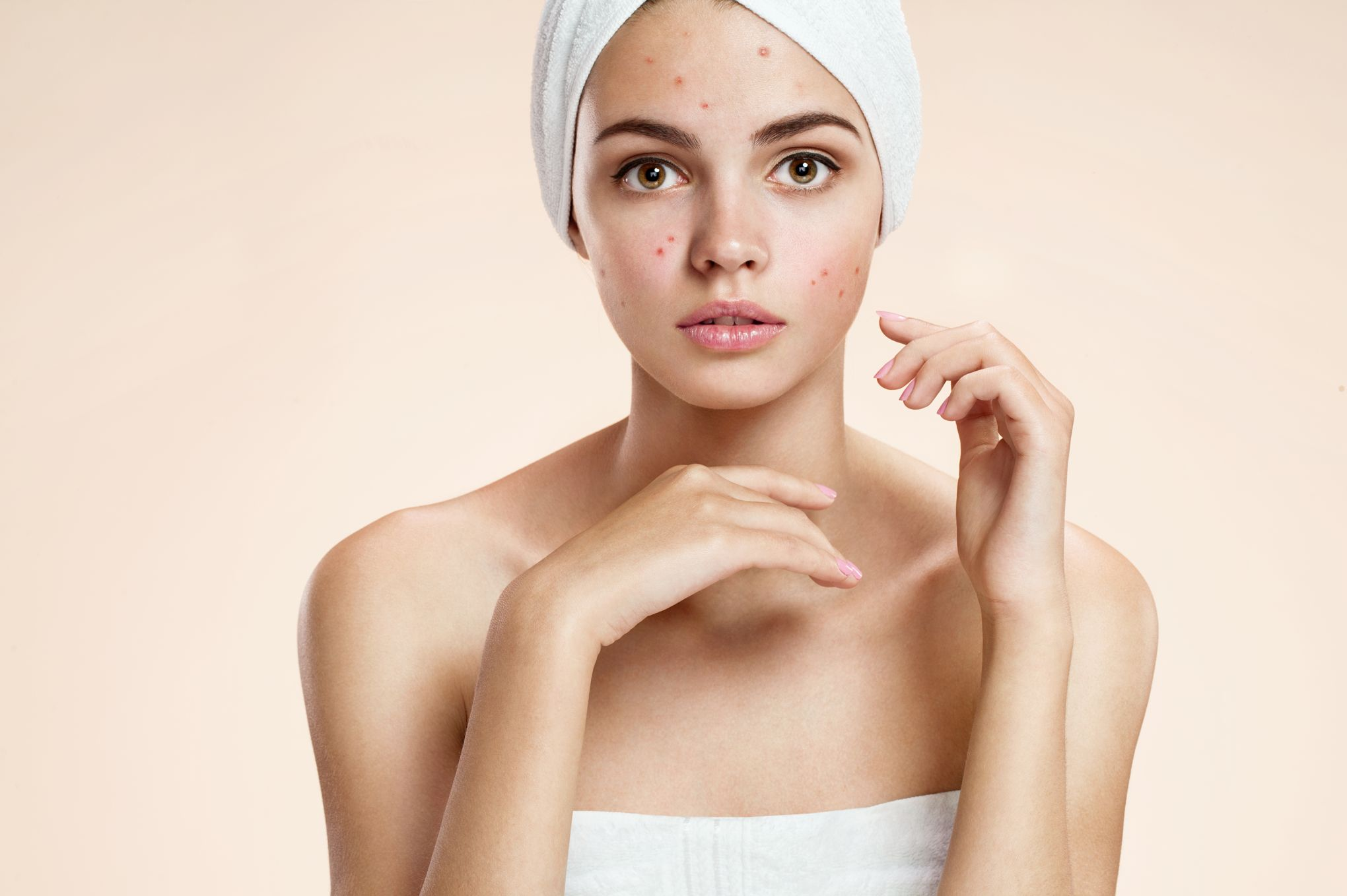 312614a56a1b Vers un vaccin contre l acné