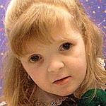 Petite fille atteinte d'un glaucome (Crédits photo: AFP)